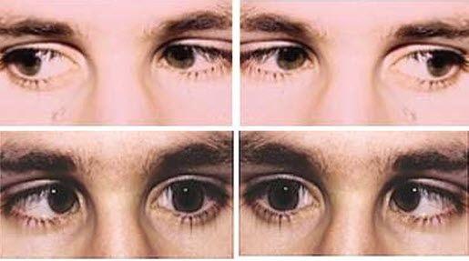 ara-meningkatkan-penglihatan-anda