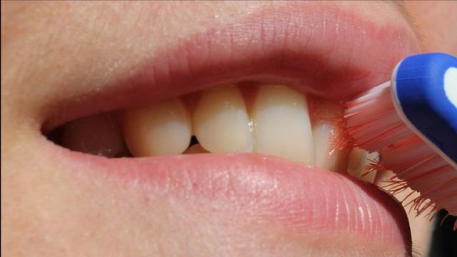 Menjaga Kebersihan Gigi
