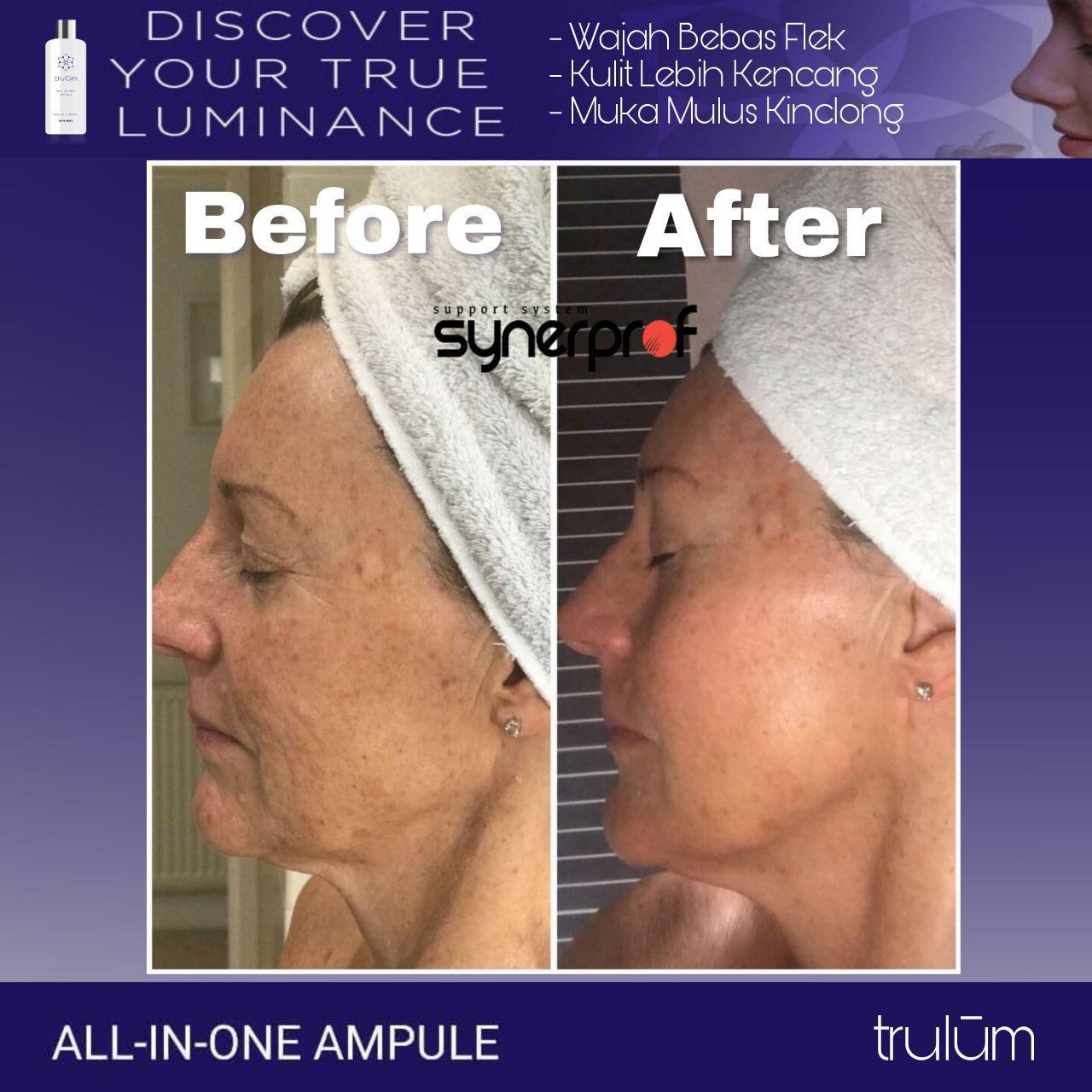 Klinik Kecantikan Trulum Skincare Synergy Di Purus, Padang Barat WA: 08112338376