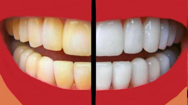 4-ways-to-get-rid-white-spots-on-teeth-with-ease