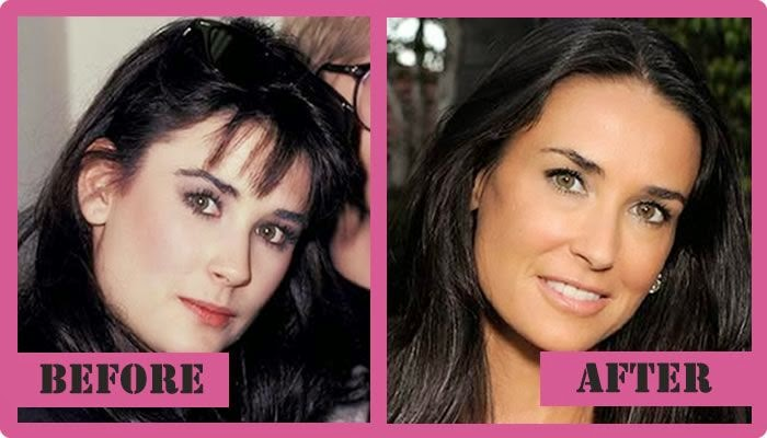 Sandi J Woods Blogs Demi Moore Plastic Surgery Rumor