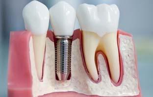 زراعة عظام الأسنان