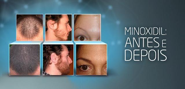 antes e depois do minoxidil
