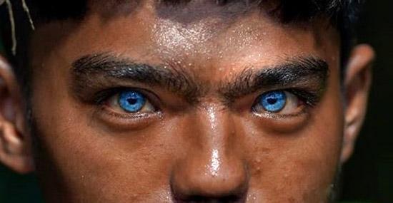 """Tribo com Olhos """"Azuis Elétricos"""" mostra resultado de condição genética rara"""