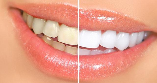 Tips Cantik Tabita Skin Care Cara Memutihkan Gigi Menggunakan Cuka Apel