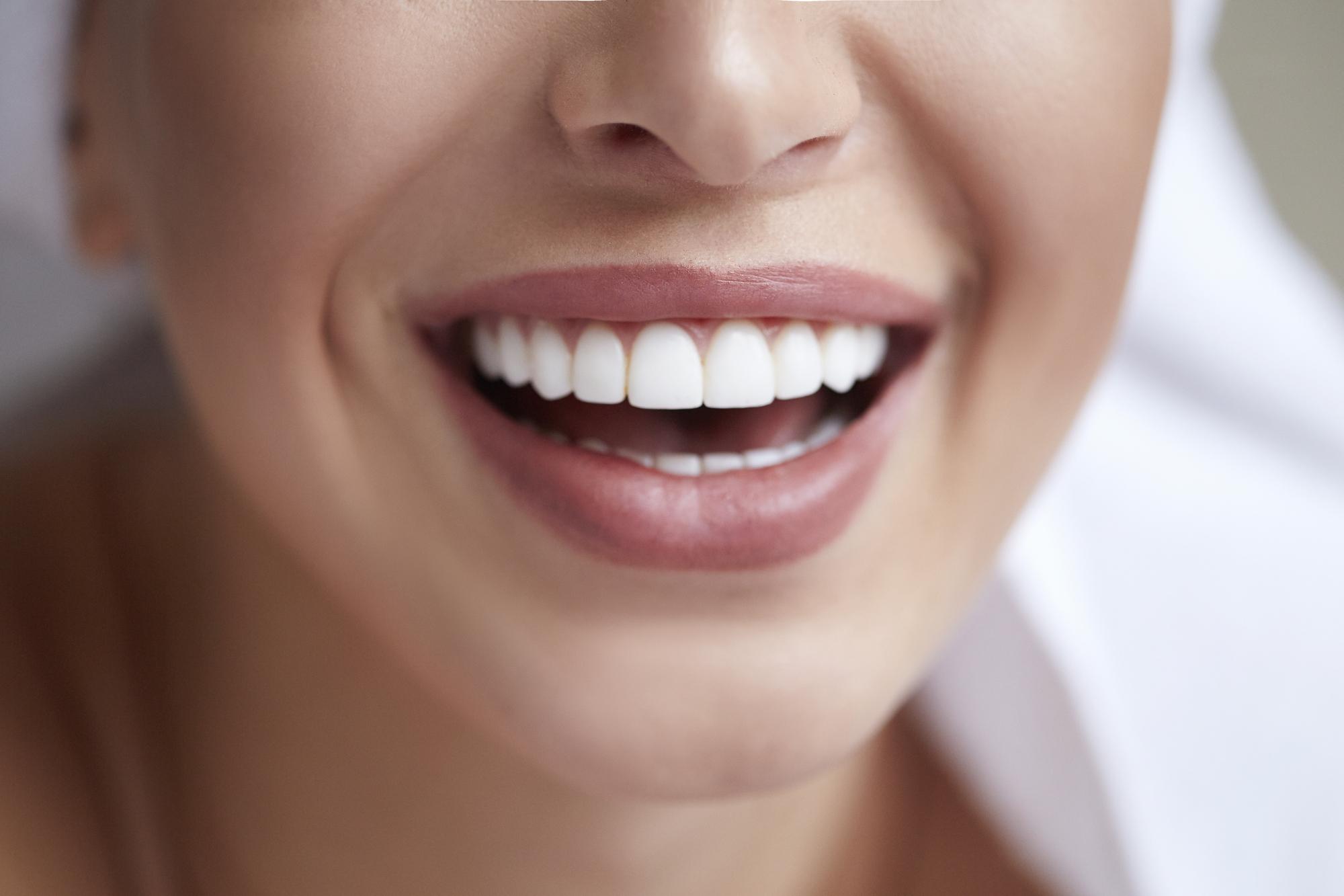 Wybielanie zębów – jakie są sprawdzone i skuteczne metody?