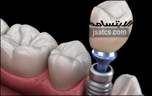 افضل عيادة لزراعة الاسنان في الامارات