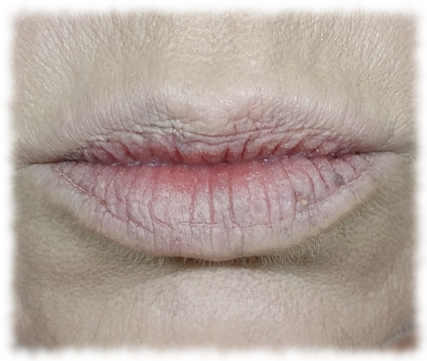 Lips after concealer blended