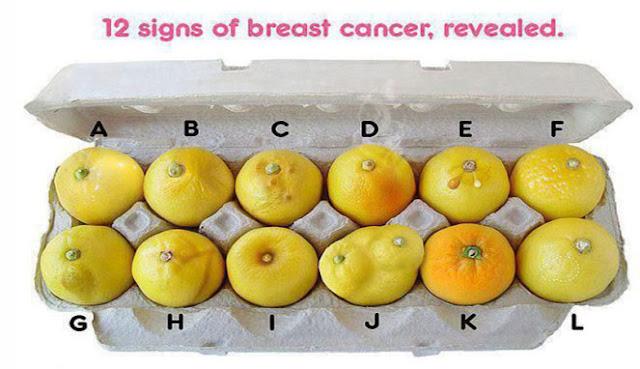 Ilustrasi kanker payudara melalui buah jeruk