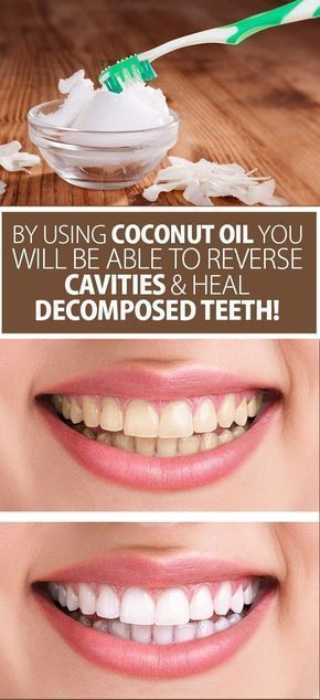 Coconut Oil To Reverse Cavities And Heal Decomposed Teeth
