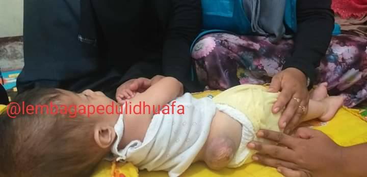 Bocah malang Menderita Hedrochifalus, Spinabifida dan Hernia Terkendala Akibat Tidak Ada Biaya