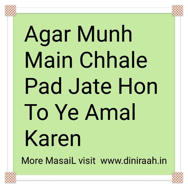Agar Munh Main Chhale Pad Jate Hon To Ye Amal Karen Ya Badan Mein Funsiyan Ho Jayen