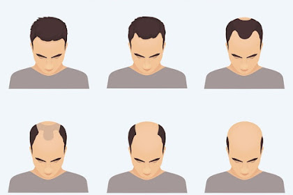 Frontal Hair Loss Treatment - Rescuing Your Hairline