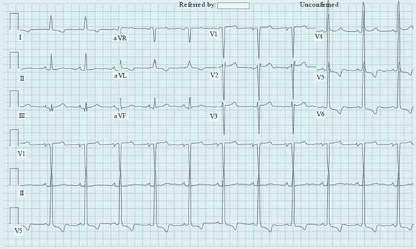 Cardiac Risk Assessment Prior to Noncardiac Surgery