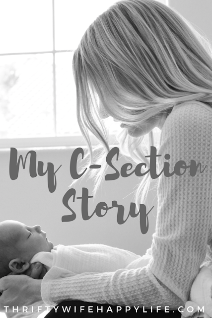 My C-section Story