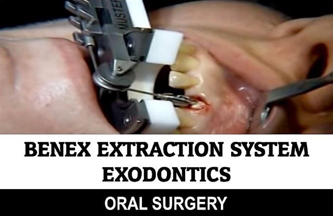 EXODONTICS: Benex Extraction System