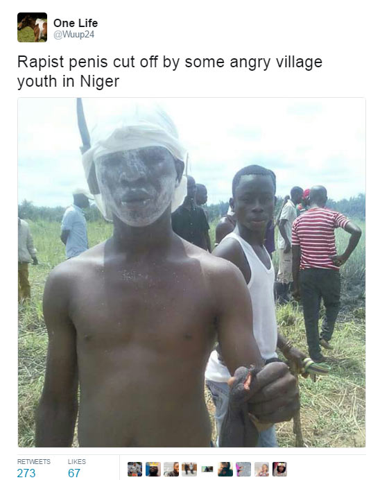 Rapist's penis chopped off by angry youths (see disturbing photo)