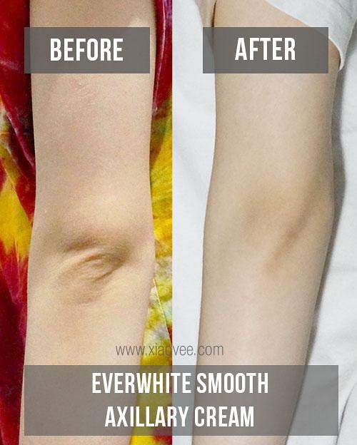Everwhite Smooth Axillary Cream review, produk perawatan kulit yang aman, produk pemutih kulit ber BPOM, produk pencerah kulit ber BPOM, Review Everwhite, Everwhite Smooth Axillary Cream before after