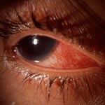 Penyakit Peradangan Mata Skleritis
