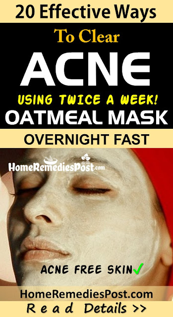 Oatmeal for acne, oatmeal facemasks for acne, How To Get Rid Of Acne, How To Get Rid Of Acne Fast, Home Remedies For Acne, Acne Treatment, How To Cure Acne, Acne Home Remedies, How To Cure Acne Fast, Acne Remedies, Home Remedies For Acne Treatment, Easy Acne Treatment, Acne Treatment, How To Treat Acne Fast