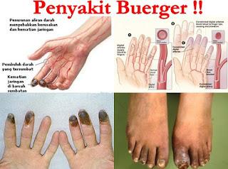http://arumherbal30.blogspot.co.id/2017/09/obat-tradisional-penyakit-buerger.html