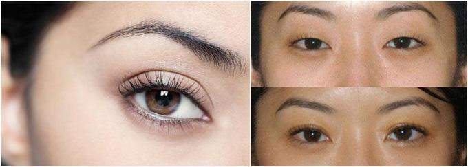 Các biểu hiện sau khi tạo mắt 2 mí không phẫu thuật và cách chăm sóc tại nhà