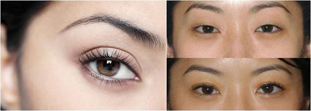 Cắt mí - Cùng tìm hiểu quy trình cắt mí mắt