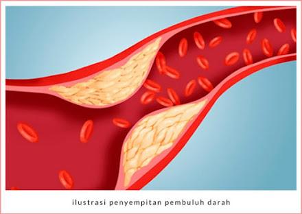 tekanan darah tinggi disebabkan oleh kolesterol tinggi