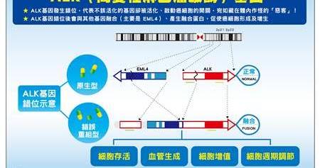 臺灣最專業的 癌癥資訊網站: 肺癌治療新突破-醫學界發現致癌基因ALK(間變性淋巴瘤激酶)