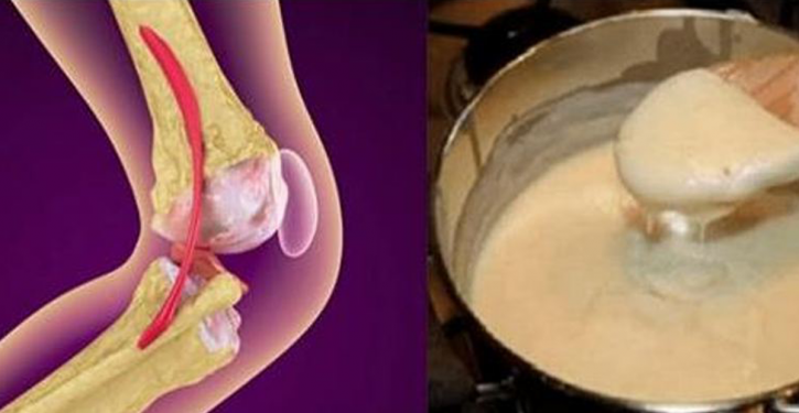 An Effective Natural Recipe For Rebuilding Bones And Knee Joints