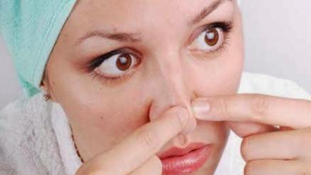 18 Cara Ampuh Mengatasi Komedo yang Membandel di Hidung Secara Alami - Cara Ku Punya