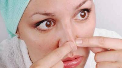 18 Cara Ampuh Mengatasi Komedo yang Membandel di Hidung  Secara Alami
