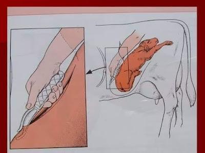 cesarean