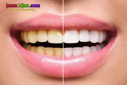 Cara aman memutihkan gigi secara alami dan efektif