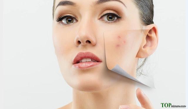 5 mặt nạ trị mụn tốt nhất cho da khô