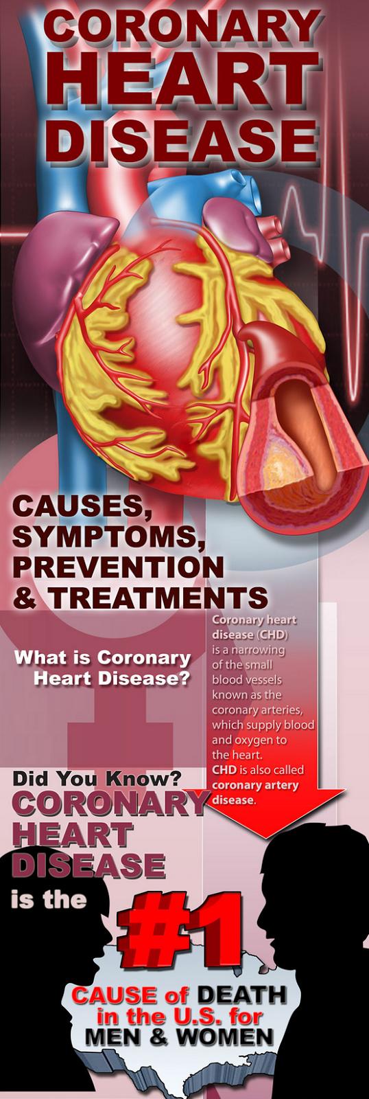 Heart Disease: Coronary Heart Disease Symptoms