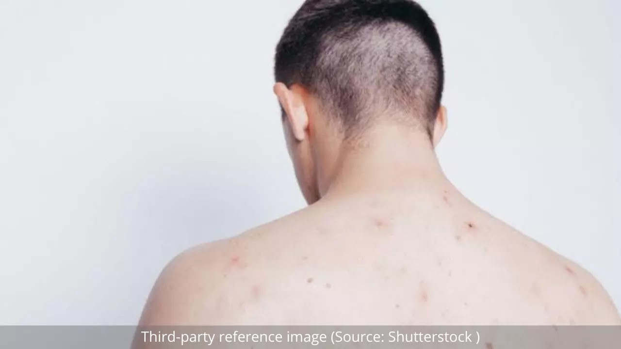 Effective Ways to Get Rid of Back Acne | HealthInsta
