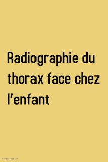 Radiographie du thorax face chez l'enfant