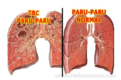 5 Cara Alami Menyembuhkan TBC (Tuberkulosis) dengan Cepat