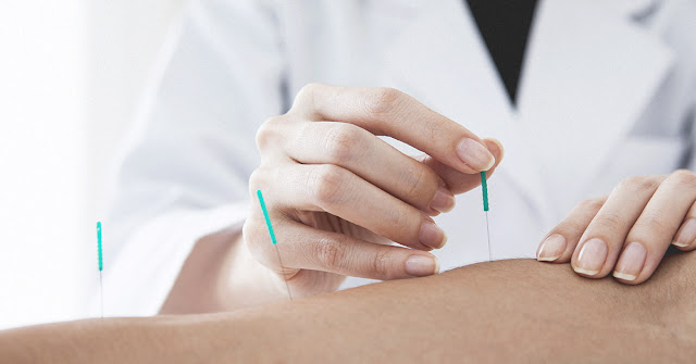 Jurnal : Efek Akupunktur Pada Pria Azoospermia