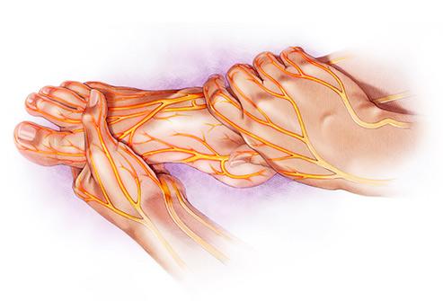Role Of Ayurvedic Formulations In Diabetic Foot