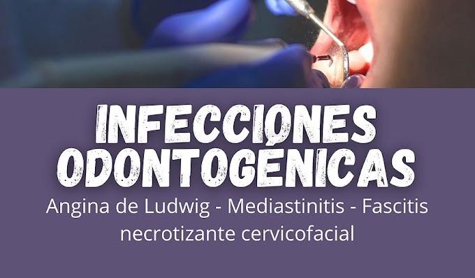 INFECCIONES ODONTOGÉNICAS: Complicaciones - Manifestaciones sistémicas
