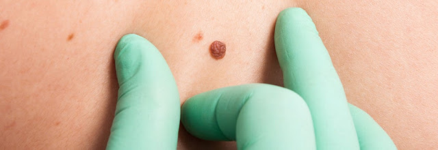 Skin Cancer Awareness Month: Why not leave skin cancer untreated