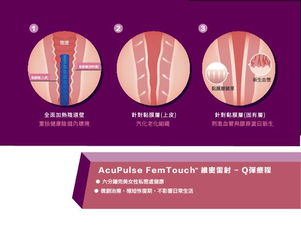 femtouch維密雷射私密處保養漏尿美白緊實陰道彈性膠原蛋白