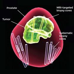 Teste com o método de biópsia combinada melhora o diagnóstico de câncer de próstata