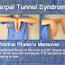 Ujian Mudah Ini Menentukan Kemungkinan Anda Mengalami Carpal Tunnel Syndrome