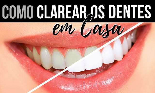 Como clarear os dentes em casa naturalmente