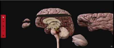 Netter's 3D Anatomy screen capture of brain dissection