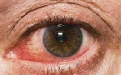 Eye Clinical Manifestations of COVID-19