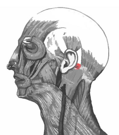 Imagen remarcada del músculo auricular posterior